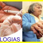Síntomas de las patologías de la mano