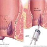 Tratamiento Efectivo contra la HEMORROIDES
