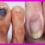 Patologías de las UÑAS: Causas, Síntomas y Tratamientos