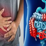 Diabetes Tipo 1 y la Enfermedad del Crohn