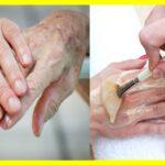 Tratamiento para las manos envejecidas por la diabetes