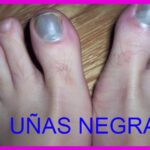 Uñas negras de los pies ¿QUE HACER?