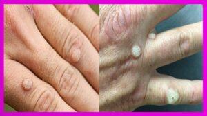 Soluciones para combatir las verrugas de los dedos Las verrugas que suelen aparecer en los dedos suelen ser tan comunes que solemos restarle la importancia